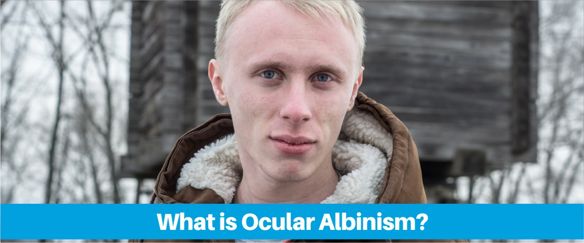 Treatment Options For Ocular Albinism